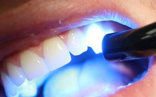 Tratament laser